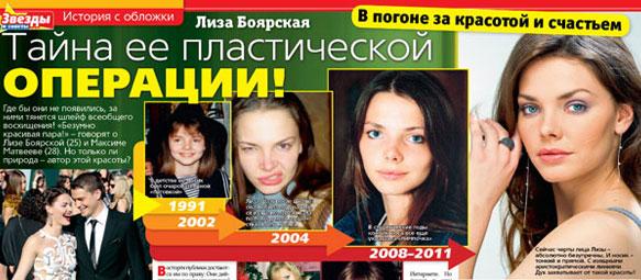 Боярская елизавета до и после пластики носа